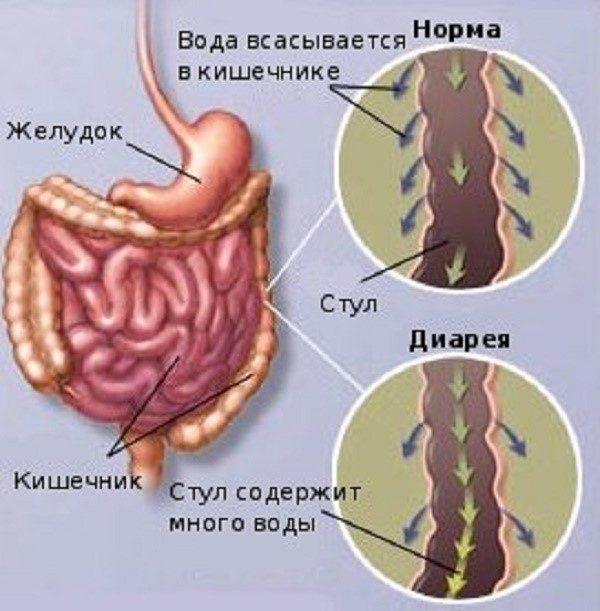 Схематичное изображение отличий между нормальным стулом и диареей