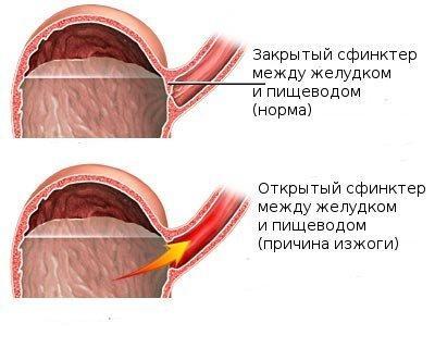 Схематичное изображение процесса, происходящего в желудке при изжоге