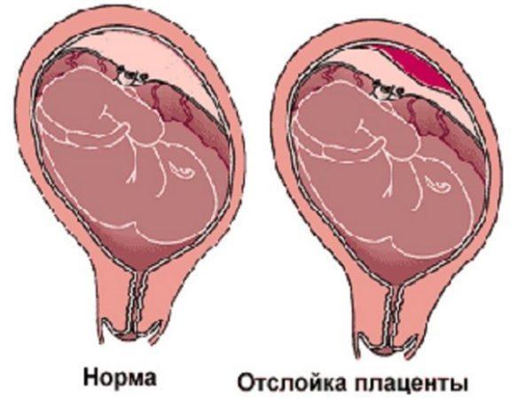 Тянет живот на ранних сроках беременности: причины, опасные состояния