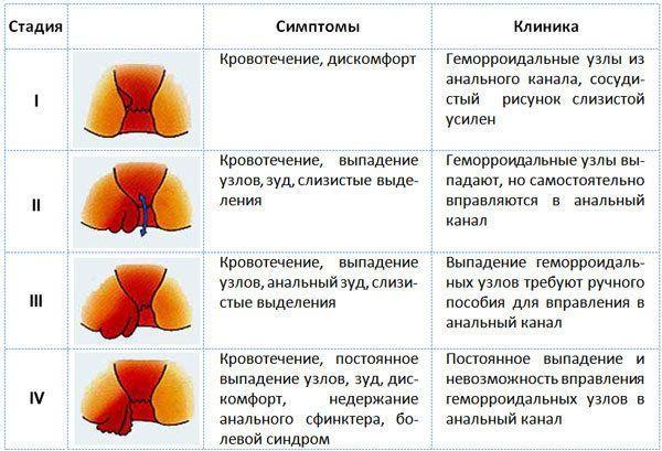 Симптомы геморроя в зависимости от стадии