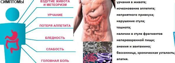 Симптомы наличия дисбактериоза кишечника