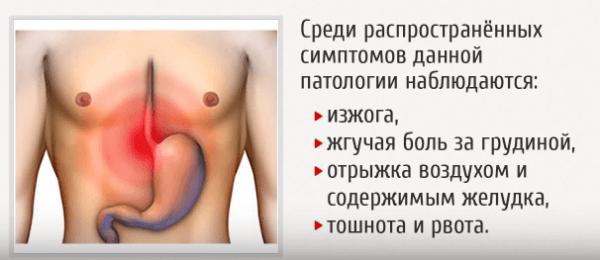 Симптомы недостаточности кардии