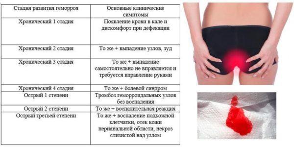 Симптомы разных степеней геморроя
