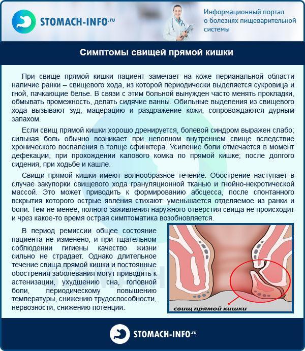 Симптомы свищей прямой кишки
