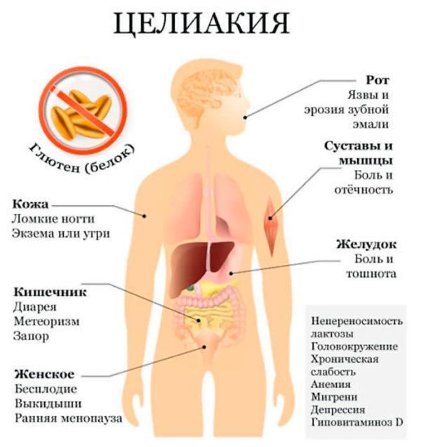 Симптомы целиакии