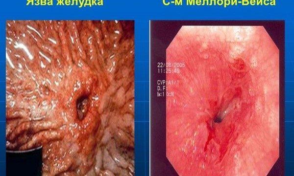 Синдром Меллори-Вейса в сравнении с язвой желудка