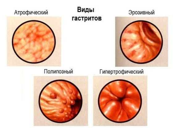 Состояние стенок желудка при разных формах гастрита