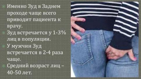 Статистика возникновения зуда в заднем проходе