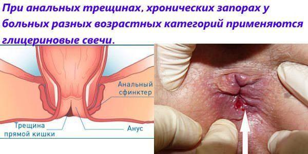 Лечение анальных трещинах