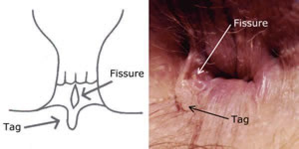 Задняя анальная трещина свищ
