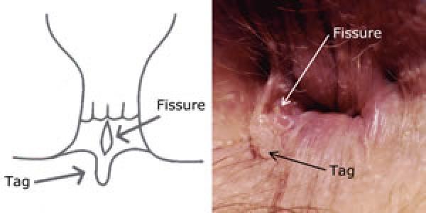 Лечение трещин в анальном отверстии