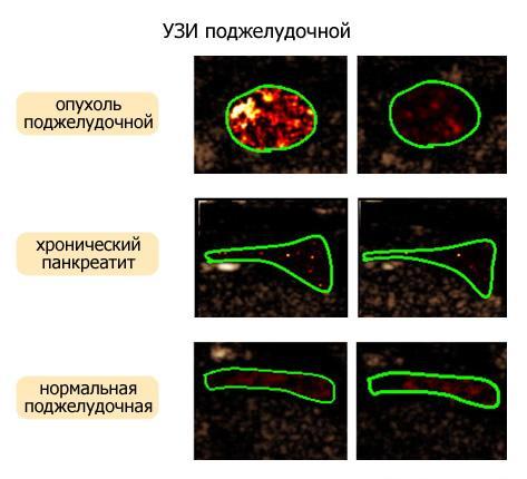 Ультразвуковое исследование поджелудочной железы