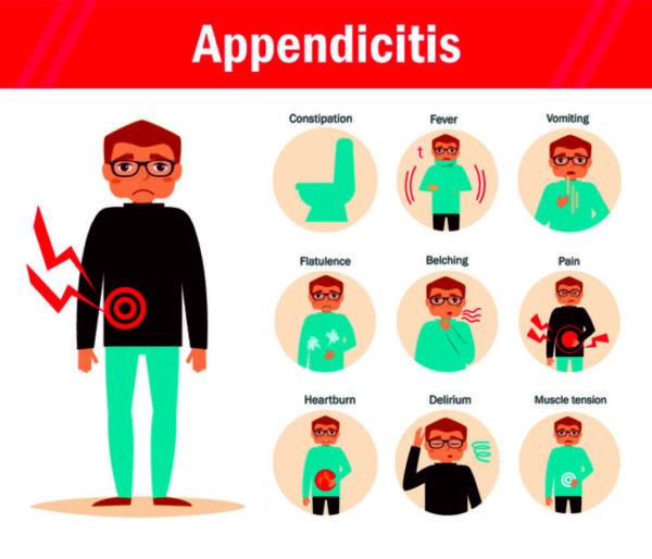 Ведущие симптомы аппендицита