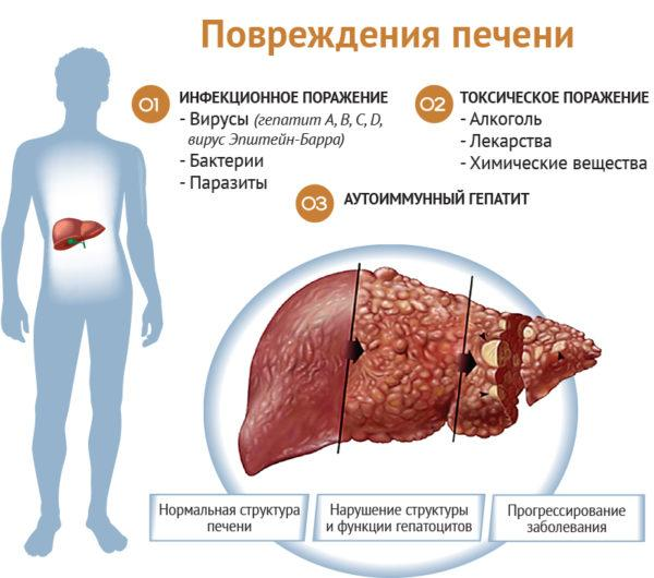 Виды и причины поражения печени