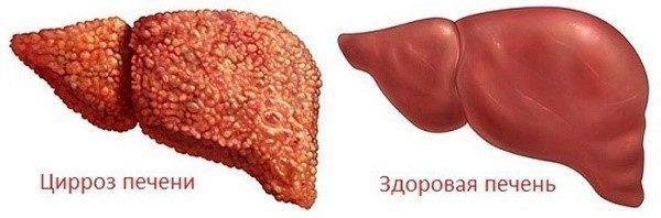 Внешний вид здоровой и больной циррозом печени