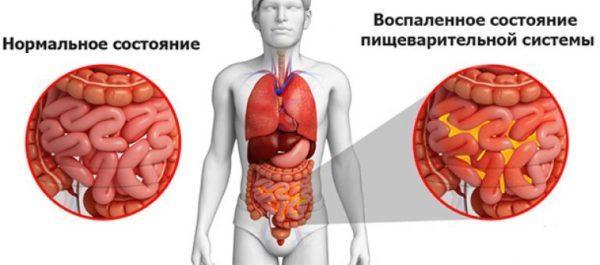 Воспаленное состояние пищеварительной системы