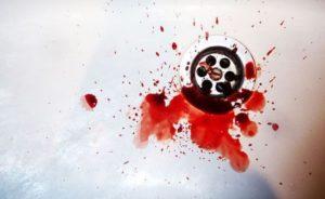 Возникновение кровотечения