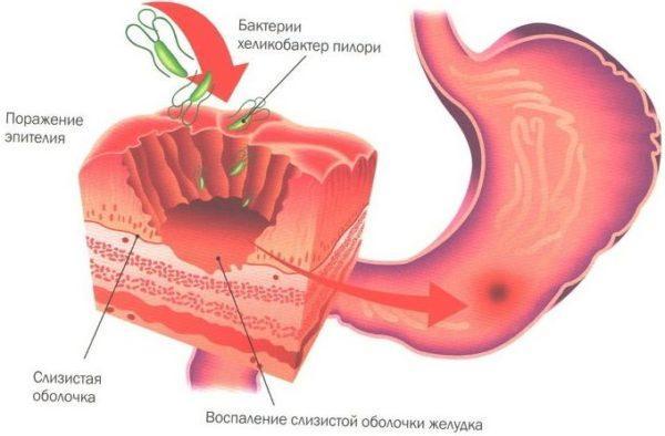 Выбор лечебной методики зафисит от степени поражения слизистой оболочки