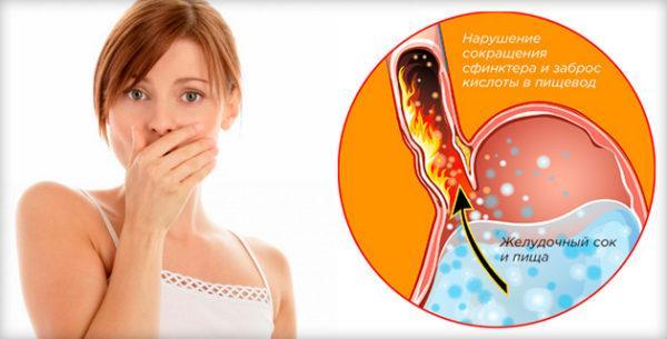 Выброс кислоты в пищевод