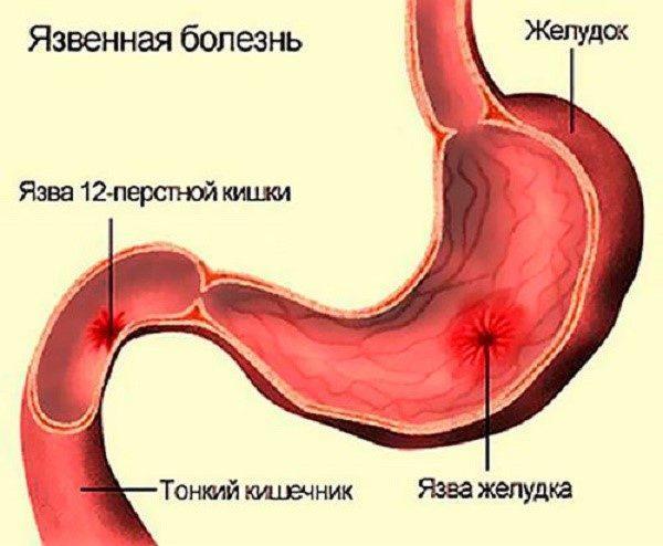 Язвенная болезнь также может стать причиной болей в животе