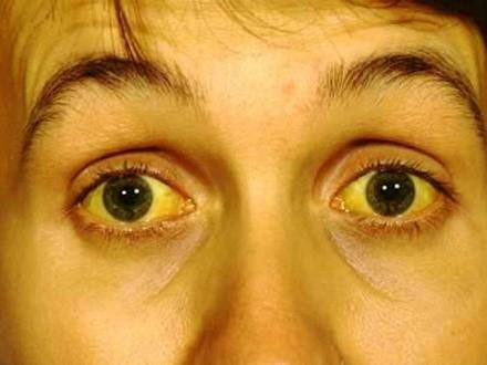 Желтуха - типичное проявление, сопровождающее интересующий нас болевой симптом