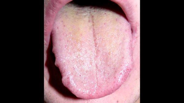 Желтый налет на языке свидетельствует о нарушениях в работе пищеварительной системы и развитии эрозийного бульбита