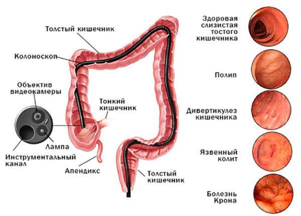 Заболевания, выявляемые при колоноскопии