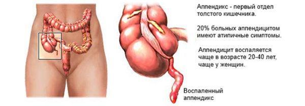 Резкая боль может свидетельствовать о воспалении аппендикса