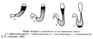 Атония желудка (нарушение моторной и эвакуаторной функции)