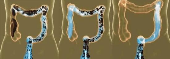 Процесс гидроколонотерапии