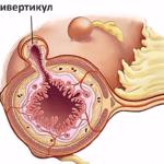 Дивертикулит (мешковидное выпячивание кишечной стенки)