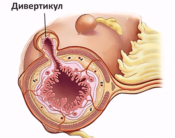 Дивертикулы - небольшие полости-мешочки в кишечнике, в которых скапливается пища и размножаются микробы