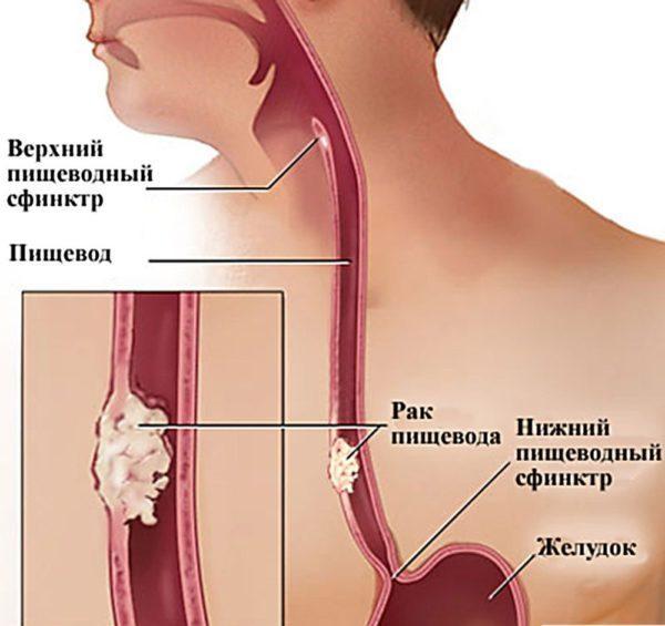 Опухоль пищевода: симптомы