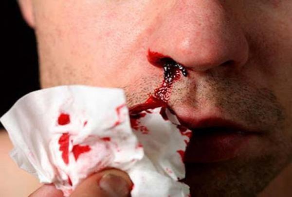 Кровотечение из носа также может впоследствии обусловить кровавую рвоту, не свидетельствующую о развитии какой либо болезни ЖКТ