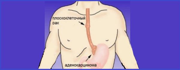 Раковая опухоль чаще всего локализуется в нижней и средней части пищевода