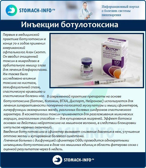 Лечение ботулотоксином