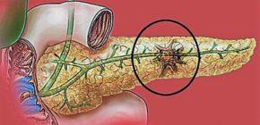 Область распространения панкреонекроза