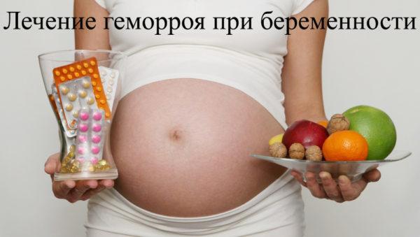Геморрой во время беременности: как лечить