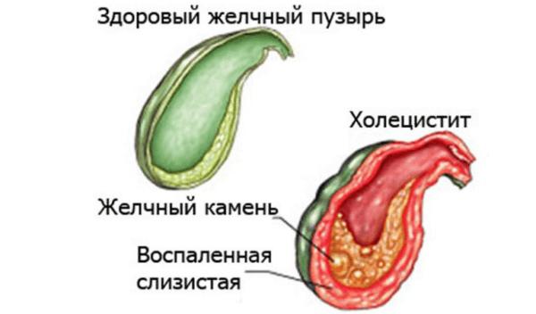 Дискинезия - основная причина воспалительных процессов в желчном пузыре и развития желчнокаменной болезни