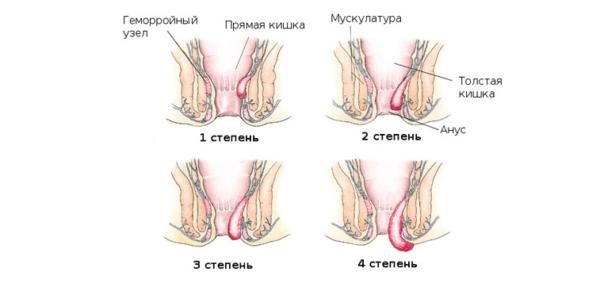 Без регулярных занятий гладкая мускулатура ослабевает и геморроидальные узлы выпадают наружу