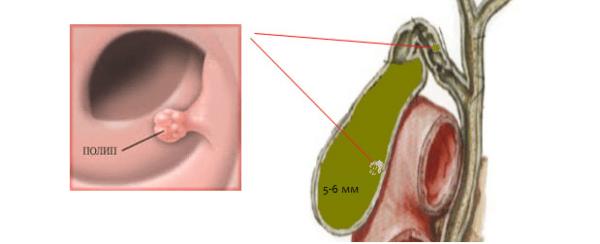 Еще одной причиной дискинезии может быть наличие полипов и других новообразований в желчном пузыре