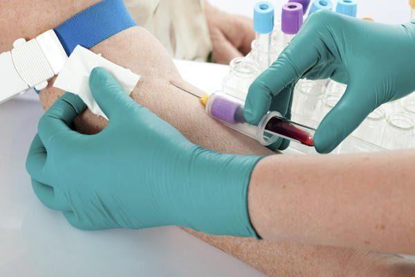 Для диагностики заболевания необходимо сдавать кровь на биохимический анализ