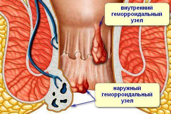 Риск выпадения геморроидальных узлов и развития осложнений болезни значительно снижается при регулярной физической активности