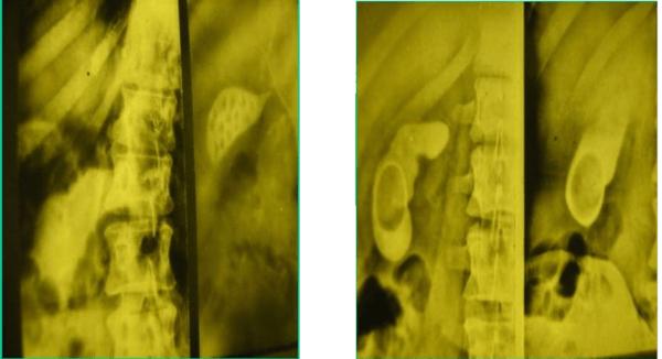 Самый распространенный метод диагностики при дискинезии желчного пузыря - холецистография
