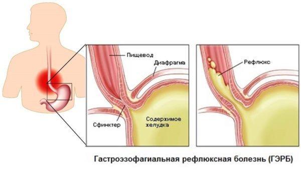 Изображение верхнего сфинктера желудка в норме и при рефлюксе