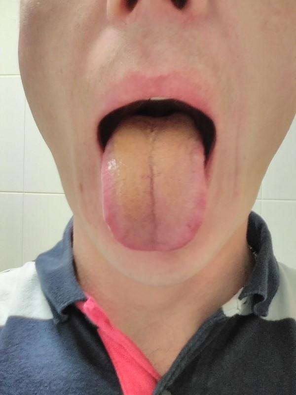 Налет на языке- основной показатель заболеваний ЖКТ