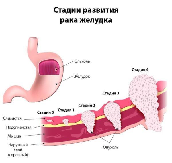 Схематическое изображение рака желудка по стадиям