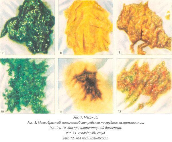 Виды кала в зависимости от характера питания и болезней