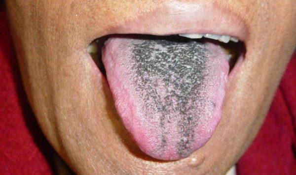 Не совсем эстетично выглядит слизистая рта и язык после приема черного активированного угля