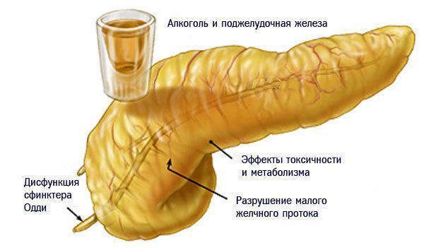 Воздействие алкоголя на поджелудочную железу